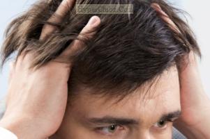 خبرهای نوید بخش در درمان ریزش مو